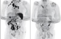 肺癌晚期病人感柒新冠后,恶性肿瘤居然消失了